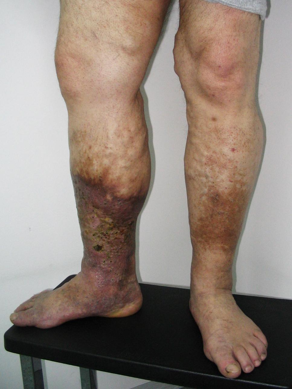 ekcéma a lábakon visszér