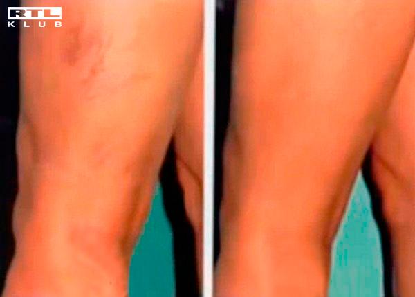 A vér prosztatitis eredménye gyakori vizelés fájdalom