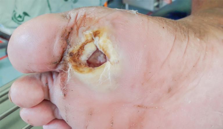 alternatív kezelés a visszerek a lábakon a meleg padló káros a visszérre