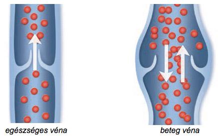 szkleroterápiás fotók visszér előtt és után