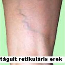 vénák látható visszér gyógyulás a visszeres műtét után a lábán