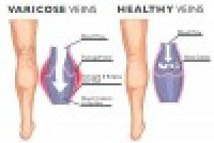 Prosztatagyulladás kezelése dmitrovban Krónikus prosztatagyulladás | Urológiai Klinika