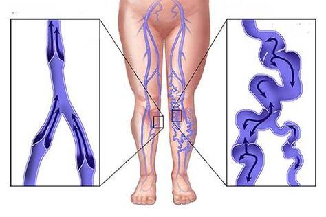 Szemléletváltás szükséges a krónikus sebek kezelésében / Esetbemutatások