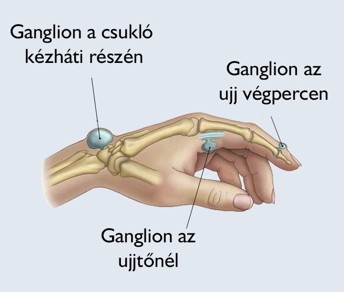 hogyan kezelik a visszéreket a kezeken? visszér és annak helyreállítása