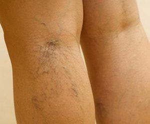 ha egy véna kijön, akkor visszér visszér a lábakon, mikor jobb kezelni