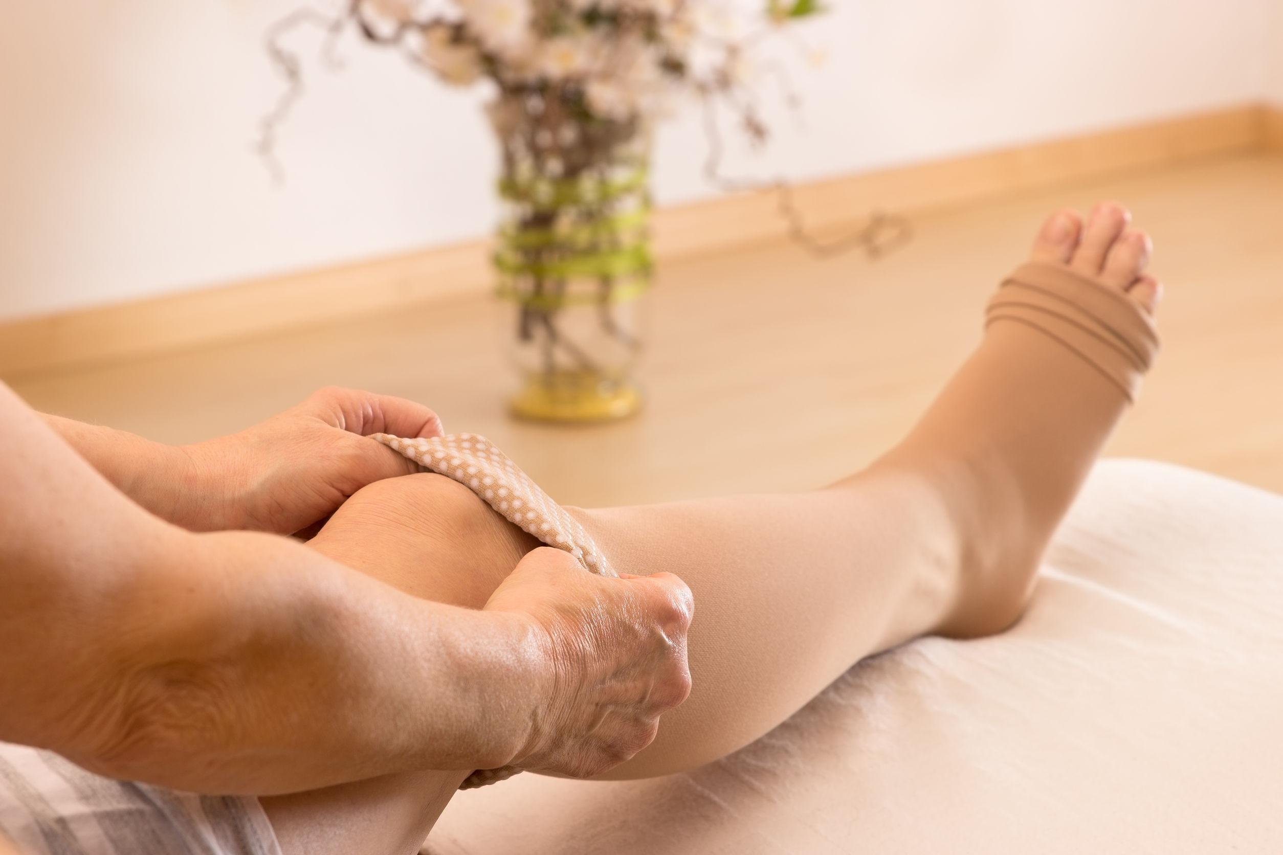 hol lehet kompressziós lábszárvédőt vásárolni visszér ellen