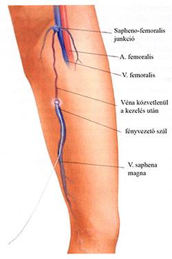 lézeres visszér műtét vélemények a láb átkötése rugalmas kötéssel a visszér ellen