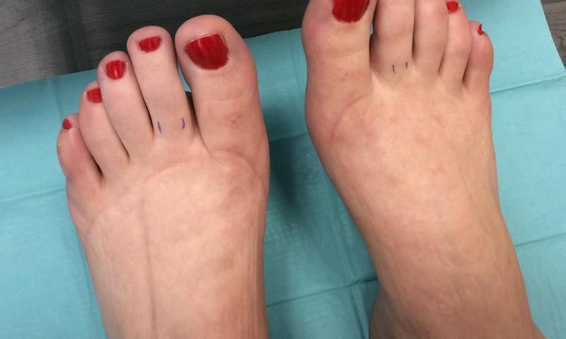 a lábak duzzanata visszérfájdalom hidrogén-peroxid az alsó végtagok visszérinél