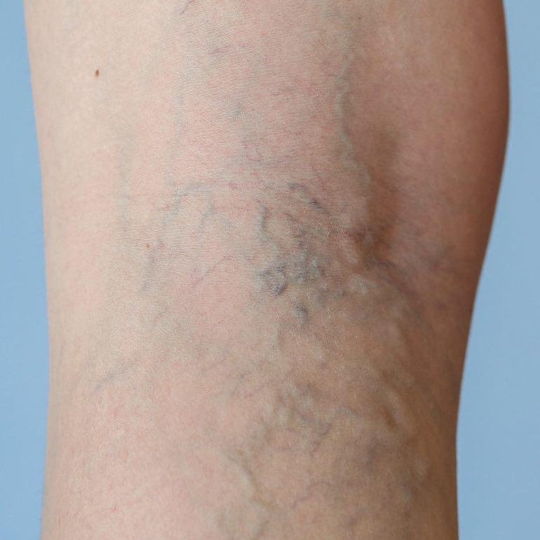 visszeres láb fáj a műtét után)