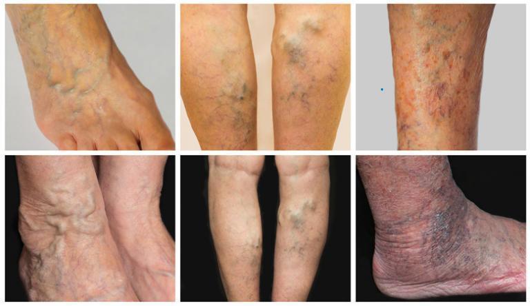 piócák kezelése lábakon visszér