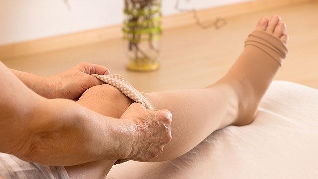 hogyan lehet dörzsölni a lábát a visszér ellen