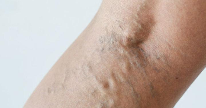 viszketés a varikózisos lábakkal