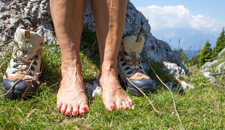 sérült láb visszeres