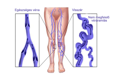 lábkötések visszerek esetén