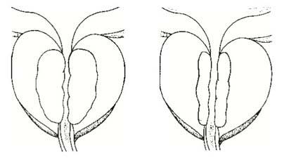 kompressziós nadrág visszerek fistulák visszér, mint kezelni