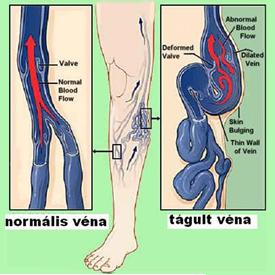 visszér a sérv után cyanosis a láb visszeres