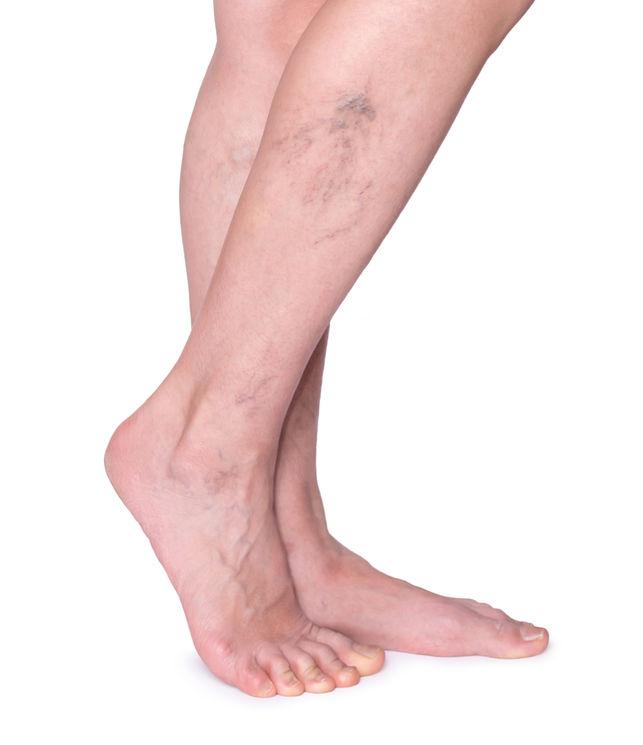 a visszeres lábak fájdalmával élő egészséges visszér videó