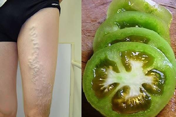 visszér duzzanat apiterápia visszér ellen