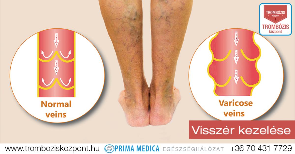 visszér eltávolítási módszerek visszér a lábakon a bőr alatt