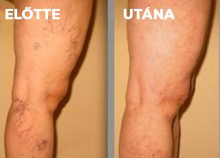 visszér kezelése Aktobe-ban visszér diagnózis, tünetek és kezelés