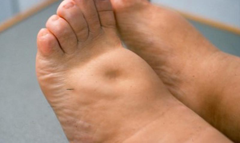 visszér és duzzadt lábak mi a visszér a lábakon
