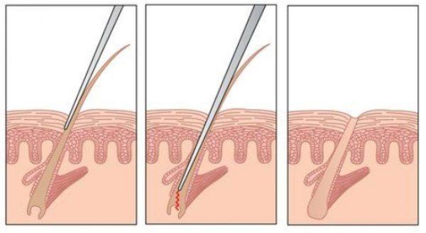 a lábak súlyos duzzanata visszeres krém gél visszér kezelés