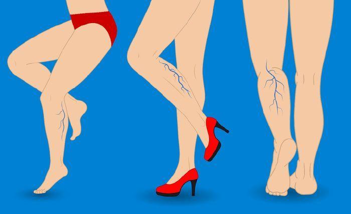 hogyan lehet megszabadulni a visszerektől a lábakon