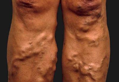 visszér a lábszár kezelésén