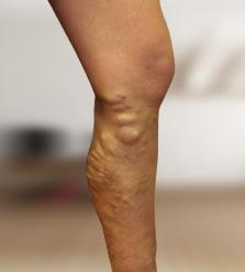 vélemények műtét után visszér a lábon