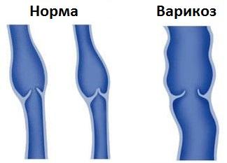 Az alsó lábszár retikuláris varikózisai, A varikózis retikuláris formája