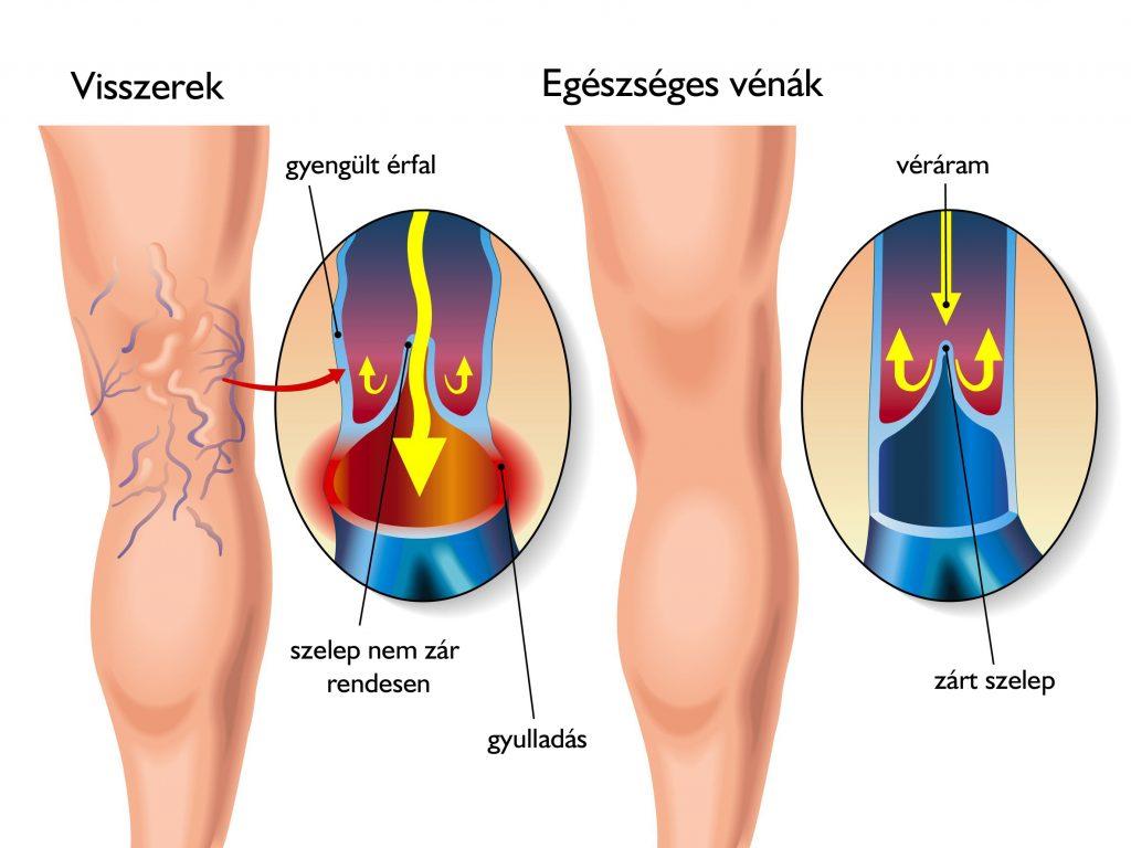 hogyan jelennek meg a visszerek a lábakon fotó