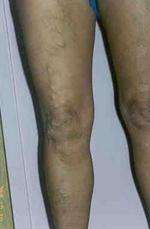 vénák és betegségeik visszér kezelés