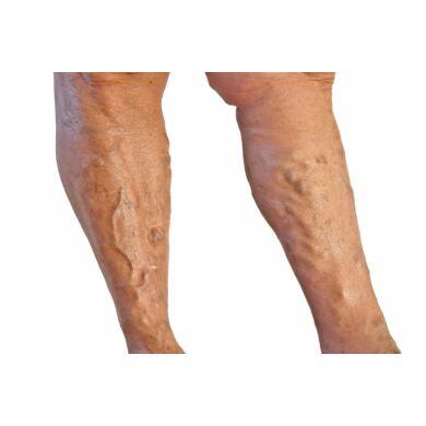 visszér kezelése fehér akáczal teljes lábak visszér