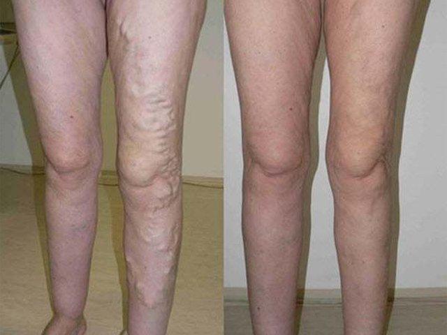 diosmin visszér vélemények gyógyszer a lábak varikózisának kezelésére