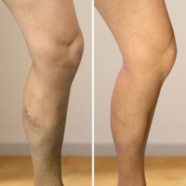 visszér a lábakon műtét ára
