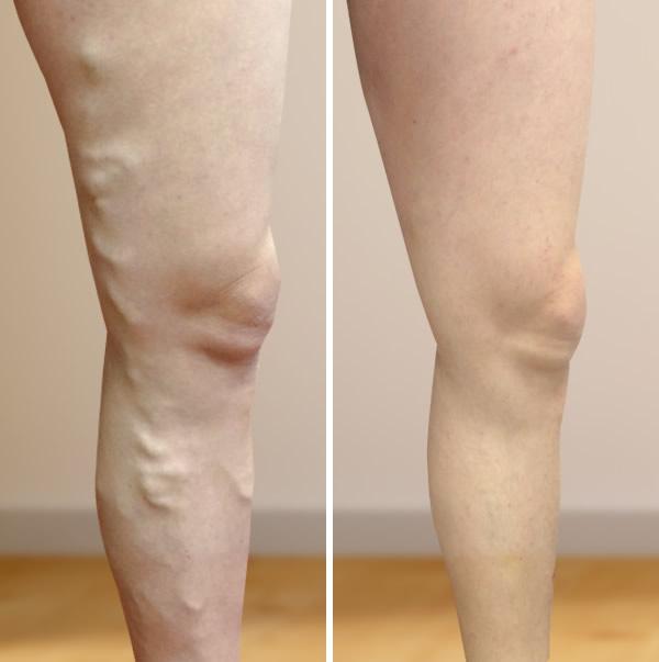 a lábak pigmentációja visszeres fotóval a vénák kitágultak, de nincs visszér