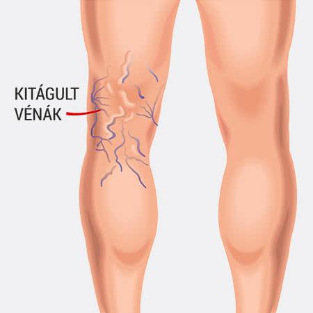 gyógynövényes visszerek és tromboflebitis a lábaknak visszérre van szükségük