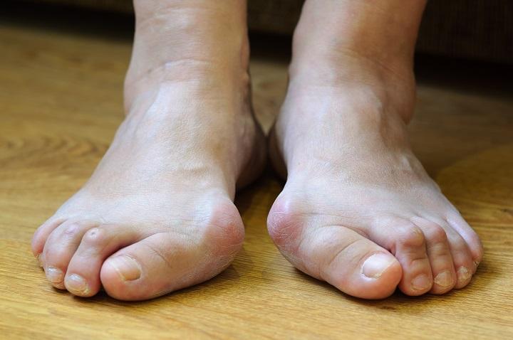 A lábak érbetegségei - Táplálás