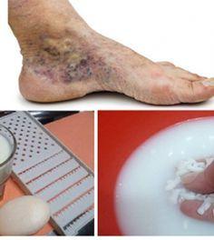 népi gyógymódok a visszerek férfiaknál visszér és a láb ödéma