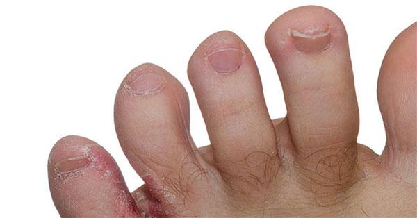 a varikózis lehetséges-e a kezeken