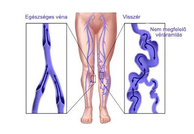 hormonok visszér ellen visszér kezelése 1 és 2 szakaszban