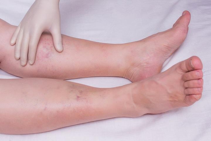kékes foltok visszérrel visszér sötét bőr