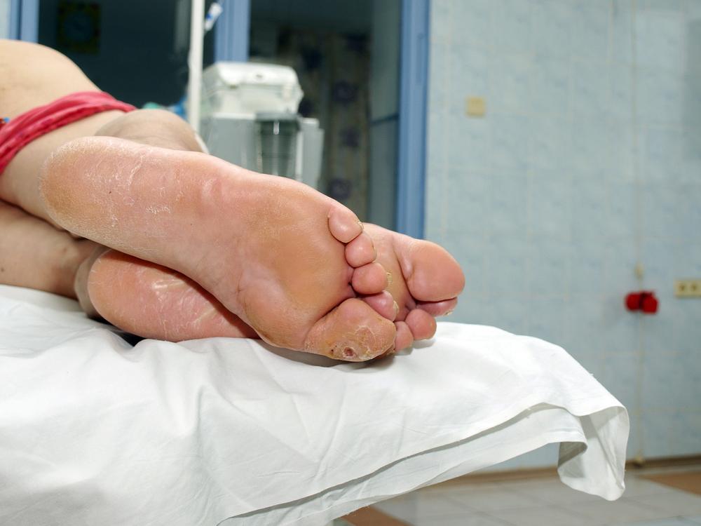 plasztikai műtét visszerek a vénák lézeres eltávolítása visszerek esetén