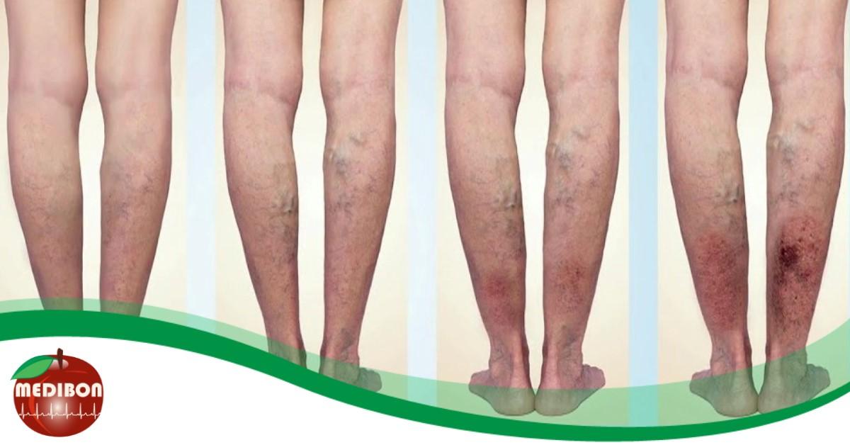 Visszértágulat (Varicositas) - A lábakon lévő visszérgyógyszerek olcsók