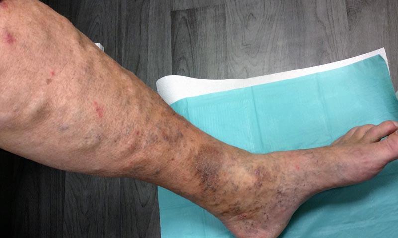 visszér a lábszár borjain fotó