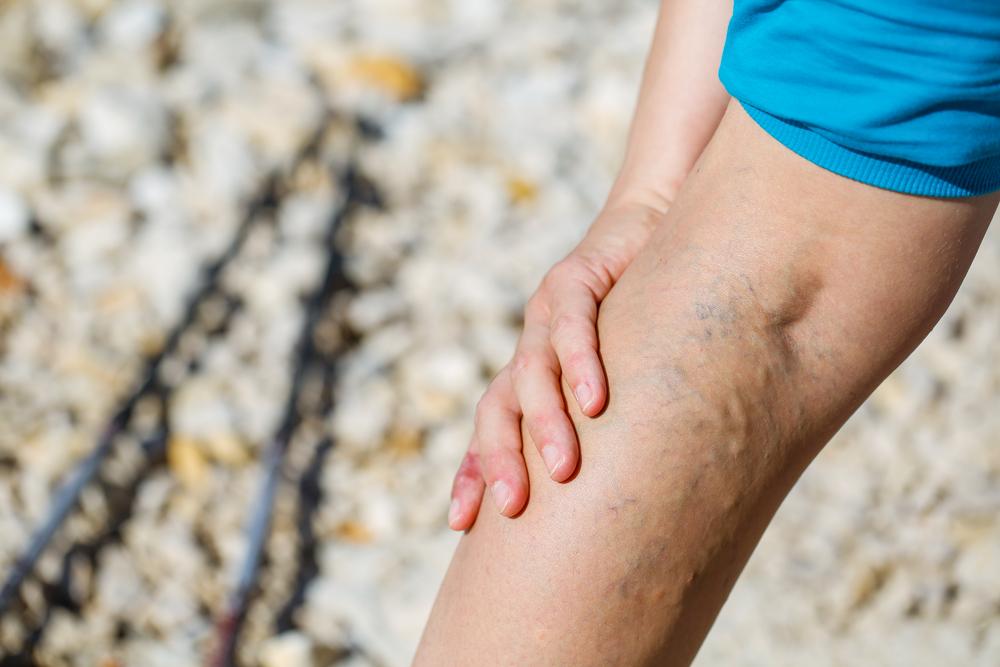 a lábak erős visszér, mint kezelni
