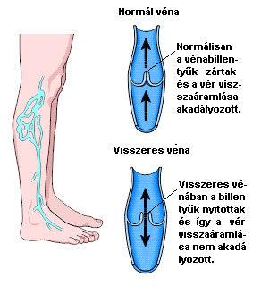 a lábak betegségei az embereknél visszér