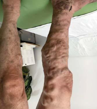 maszk a visszeres lábak számára kiálló vénák visszérrel
