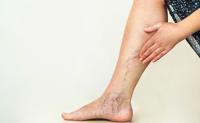 szubkután visszér a lábakon