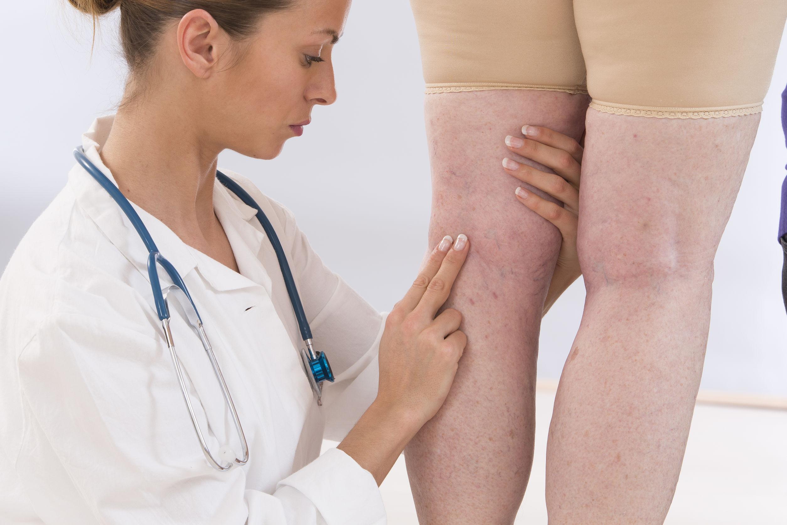 visszérgyulladás az alsó végtagok vénáinak tromboflebitisa visszér okoz és kezelés